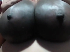 Extremely dark, huge areola.