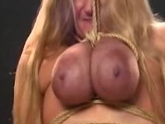 Coarse Breast Thraldom and Lactation